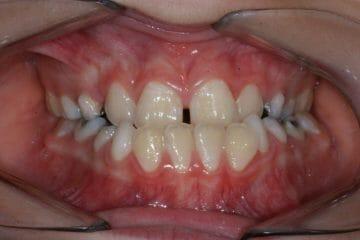 Appareil orthodontique Freddy - Avant le traitement