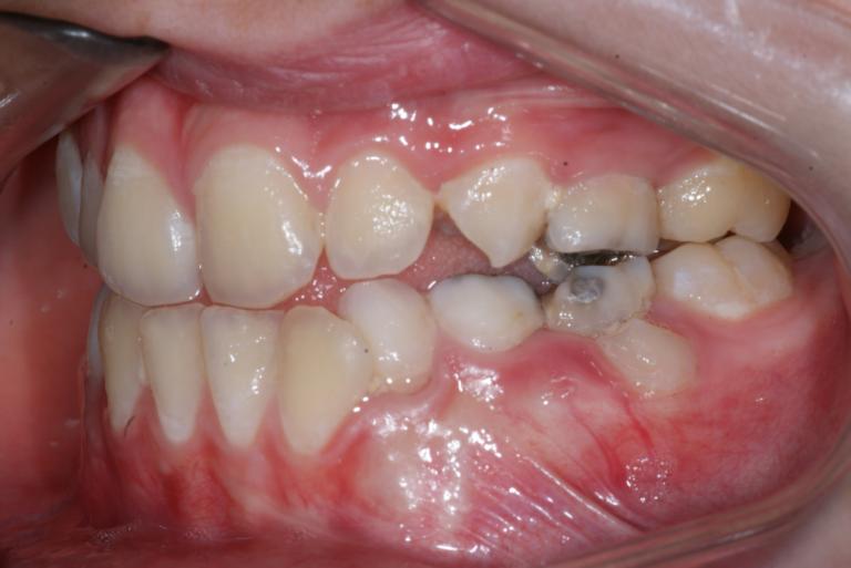 Appareil orthodontique Freddy 9