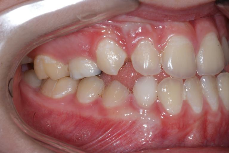 Appareil orthodontique Freddy 7