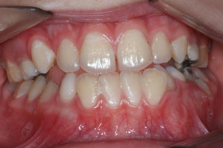 Appareil orthodontique Freddy 8