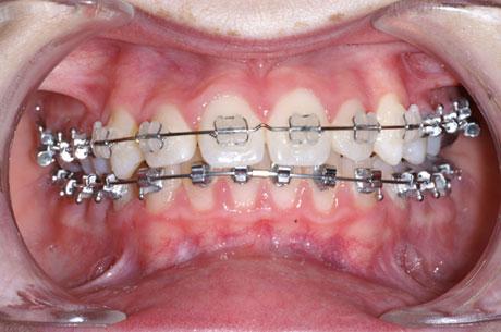 Boitiers transparents appareil orthodontique en bouche