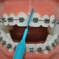 Pour nettoyer sous le fil orthodontique