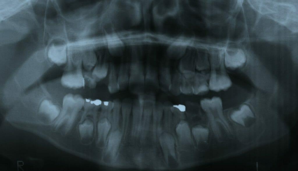 Perte prématurée d'une deuxième molaire primaire