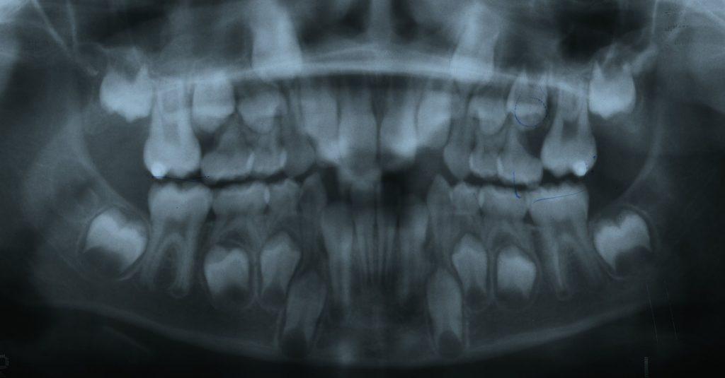 Éruption ectopique d'une molaire