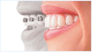 Traitement Invisalign appareil orthodontique